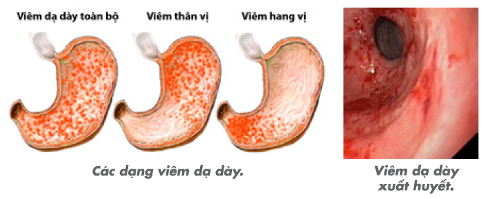 Viêm hang vị dạ dày phù nề xung huyết là bệnh phổ biến ảnh hưởng nghiêm trọng tới sức khỏe