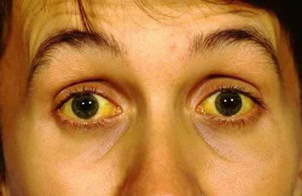 Vàng da, vàng mắt... là dấu hiệu điển hình cảnh báo các bệnh ở gan