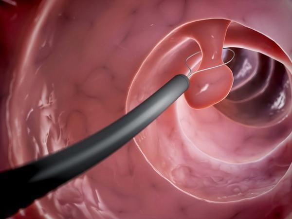 Phẫu thuật cắt polyp đại tràng được áp dụng trong các trường hợp polyp có kích thước lớn hoặc đa polyp