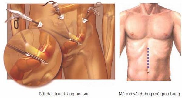 Phẫu thuật mổ đại tràng bằng phương pháp nội soi hoặc mổ mở giúp cải thiện sớm bệnh