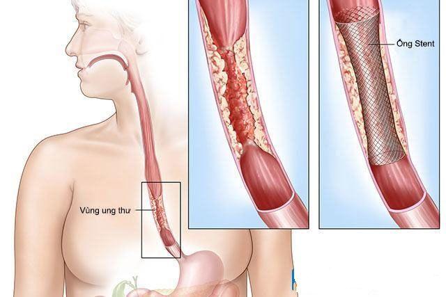 Trào ngược dạ dày nếu không điều trị triệt để, đúng phương pháp có thể làm tăng nguy cơ ung thư