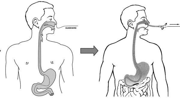 Nội soi dạ dày đường mũi là phương pháp hiện đại đang được áp dụng rộng rãi giúp chẩn đoán các bệnh lý ở dạ dày