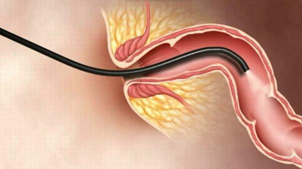 Nội soi dạ dày gây mê là phương pháp thăm khám an toàn, thoải mái, dễ chịu