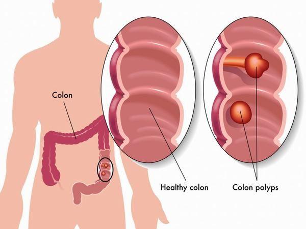 Polyp đại tràng là bệnh thường gặp, chúng có thể là 1 hoặc nhiều polyp trong đại tràng.