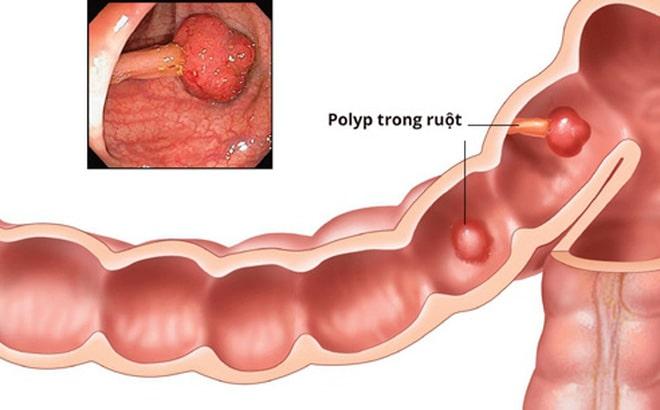 Polyp đại tràng tăng sản là gì 2