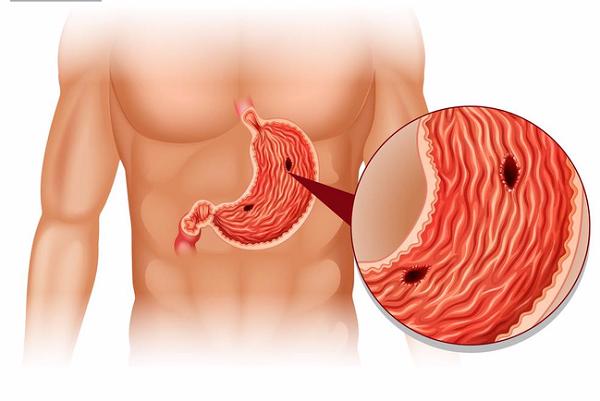 Thủng dạ dày là tình trạng dạ dày xuất hiện lỗ thủng.