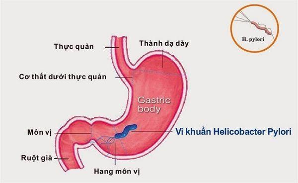Vi khuẩn HP có thể gây ra các bệnh lý ở dạ dày như viêm dạ dày, đau dạ dày, viêm loét dạ dày...