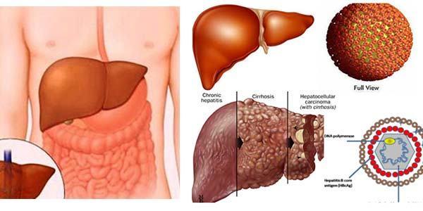 Xơ gan là một trong những biến chứng thường gặp của viêm gan B mạn tính.