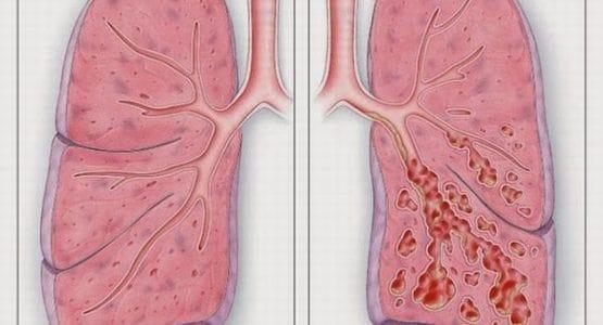 Bệnh xơ phổi có nguy hiểm không?
