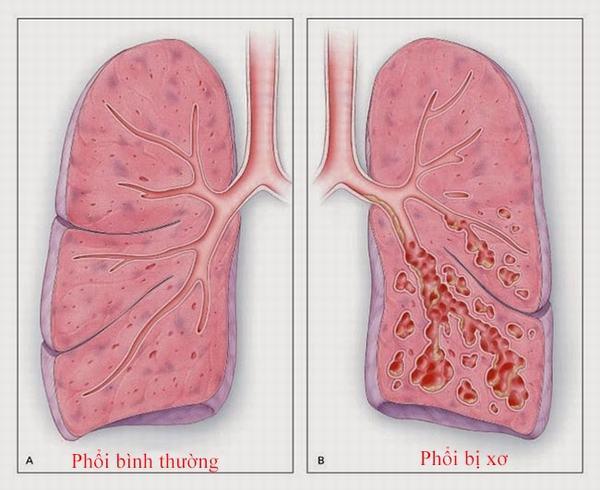 Xơ phổi là tình trạng tổn thương mạn tính mô ở sâu bên trong phổi, làm cho phổi dài lên, cứng và mất tính đàn hồi, tạo sẹo.
