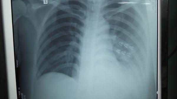 Tràn dịch màng phổi xảy ra khi lượng dịch này tích tụ quá nhiều và tách phổi ra khỏi thành ngực.