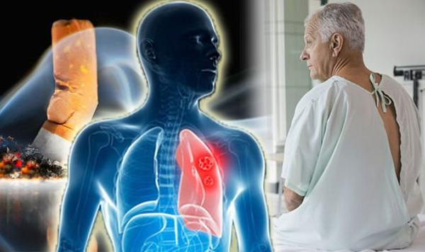Người bệnh cần đi khám để làm các xét nghiệm, chẩn đoán cụ thể nhằm phát hiện sớm bệnh