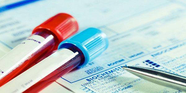 Các chỉ số xét nghiệm gan được tìm thấy qua xét nghiệm máu