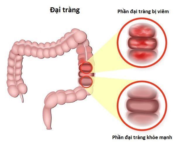Viêm đại tràng có thể là do nhiễm khuẩn hoặc do chế độ sinh hoạt không phù hợp