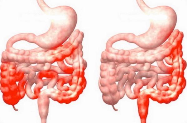 Khi bị viêm đại tràng người bệnh cần chú ý ăn uống