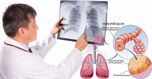 Viêm phế quản là một trong những bệnh thường gặp ở đường hô hấp gây ảnh hưởng lớn tới sức khỏe