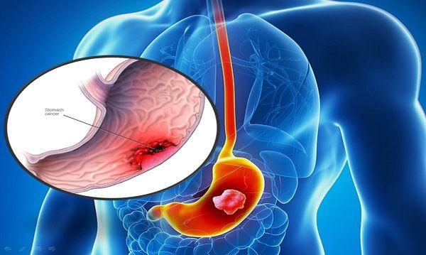 Vi khuẩn HP không được tiêu diệt hoàn toàn có thể gây ung thư dạ dày, rất nguy hiểm