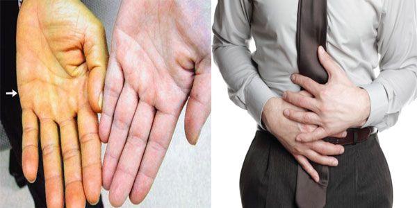 Người bệnh cần đi khám ngay khi có dấu hiệu mắc bệnh để kịp thời điều trị