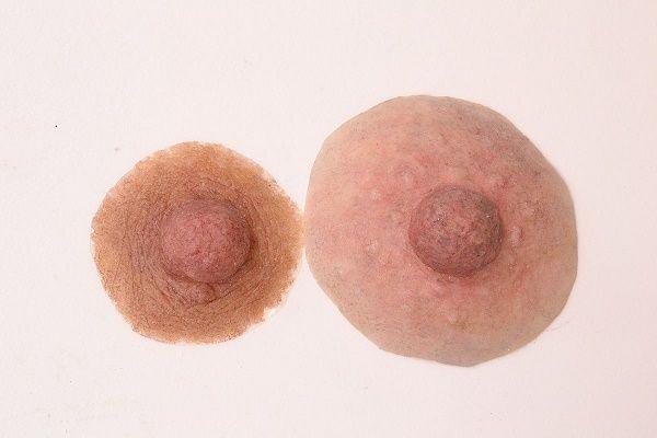 Đau và kích ứng đi kèm với làn da có sẹo, hoặc da phồng rộp có thể là dấu hiệu của phản ứng dị ứng hoặc viêm da dị ứng