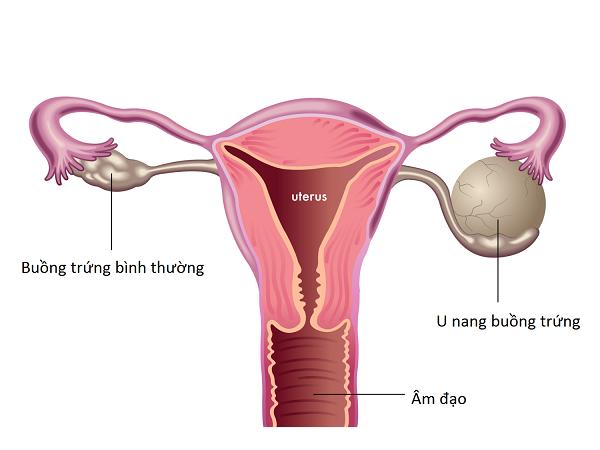 Thuốc điều trị u nang buồng trứng?