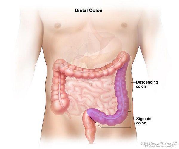 Vị trí đại tràng xích ma (sigma colon)