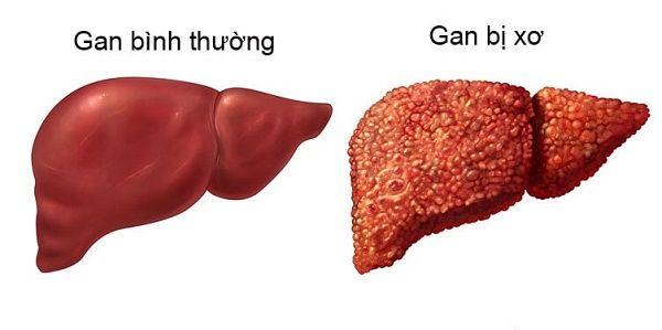 6 nguyên nhân ung thư gan bạn cần nhớ