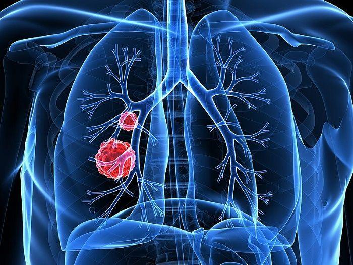 Cách đơn giản phát hiện sớm các bệnh ung thư thường gặp nhất