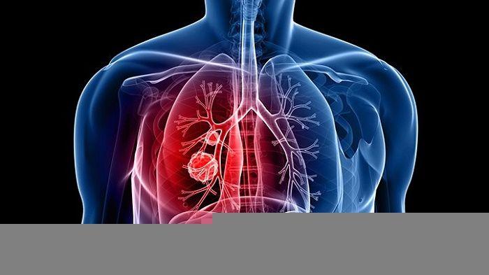 Ung thư phổi thường gặp ở độ tuổi nào