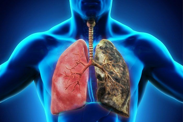 Uống rượu gây ung thư phổi