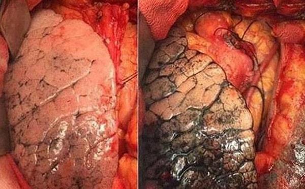 ung thư phổi giai đoạn cuối