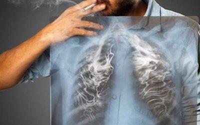 """Cảnh báo: 7 bộ phận trong cơ thể dễ bị ung thư """"làm phiền"""""""