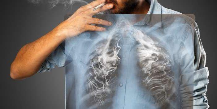 Thuốc lá là thủ phạm gây ra 90% trường hợp ung thư phổi