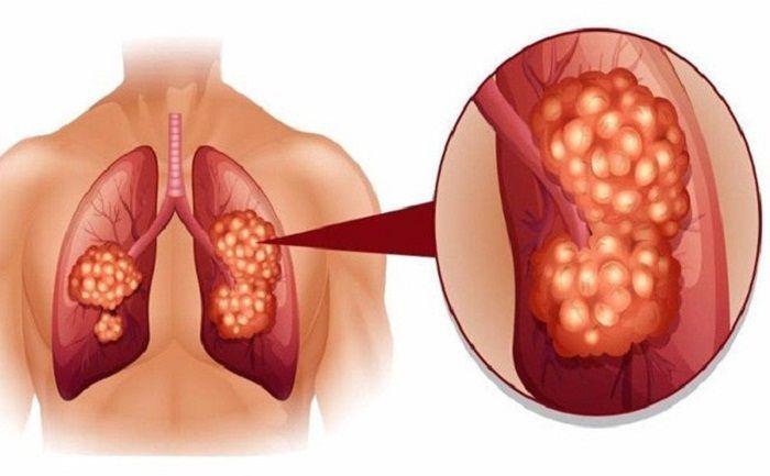 ung thư phổi là một bệnh nguy hiểm
