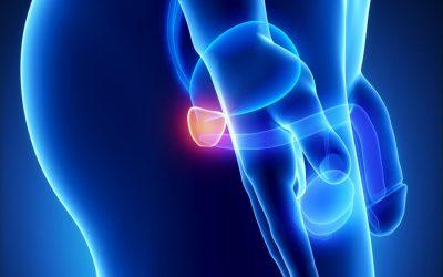 Ung thư tuyến tiền liệt có chữa được không?