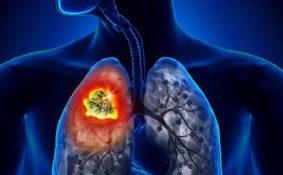 8 dấu hiệu nhận biết sớm ung thư phổi