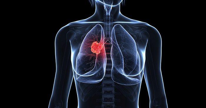 Các loại ung thư phổi 1
