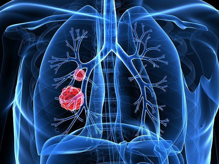 Có 7 dấu hiệu này đi khám ung thư phổi ngay