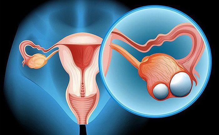 Ung thư buồng trứng giai đoạn 2 1