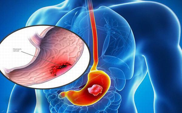 Hình ảnh ung thư dạ dày