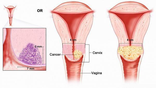 Ung thư cổ tử cung là một trong những bệnh ung thư thường gặp ở phụ nữ trung niên và cao tuổi
