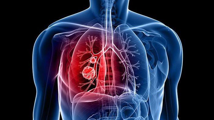 Ung thư phổi xâm nhập