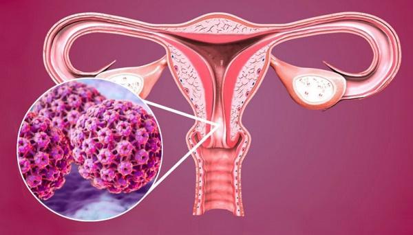 Những điều cần biết về ung thư cổ tử cung