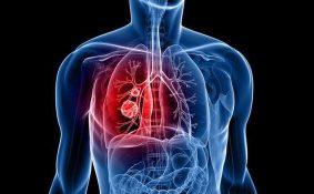 Chữa ung thư phổi bằng thuốc nam có được không?