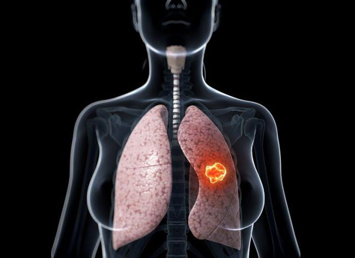 Ung thư phổi giai đoạn 3B