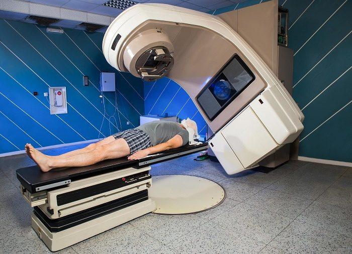 Những tác dụng phụ có thể gặp sau xạ trị ung thư