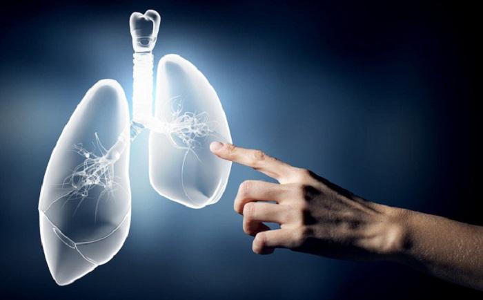 Ô nhiễm không khí gây ung thư phổi 2