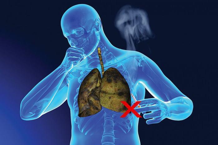 Hút thuốc lá là nguyên nhân hàng đầu gây ung thư phổi