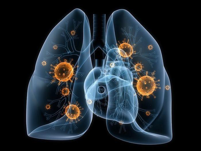 Một số bệnh lý lành tính như viêm phổi hoặc lao phổi cũng làm dấu ấn ung thư phổi tăng cao