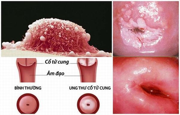 triệu chứng khó nhận biết của ung thư cổ tử cung