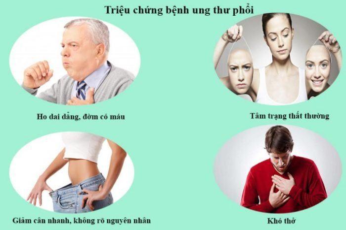 ung thư phổi giai đoạn 4 triệu chứng